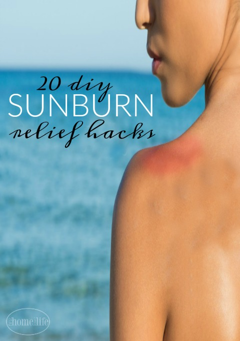 DIY SUNBURN RELIEF via www.firsthomelovelife.com